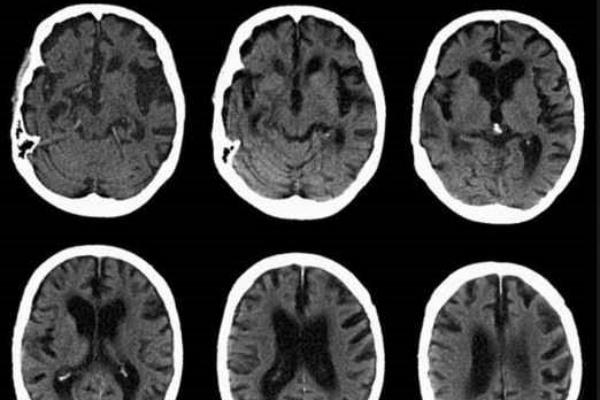 Inyectar un virus para prevenir el Alzheimer
